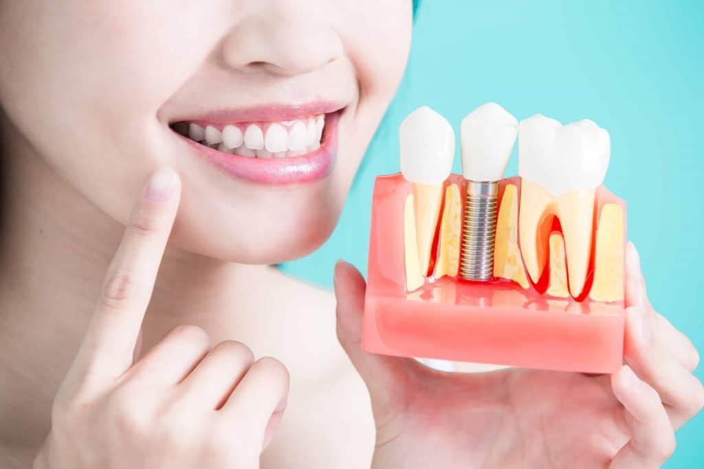 cosmetic Dentistry, composite fillings, Mentone dentist, Mentone cosmetic dentist
