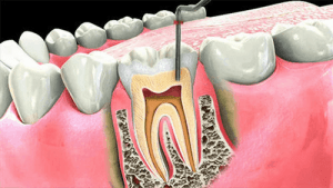 Process of the Root Canal