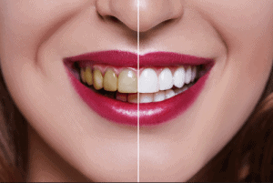 Different Types of Teeth Whitening Treatments