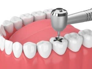 Dental-Implant-Treatment