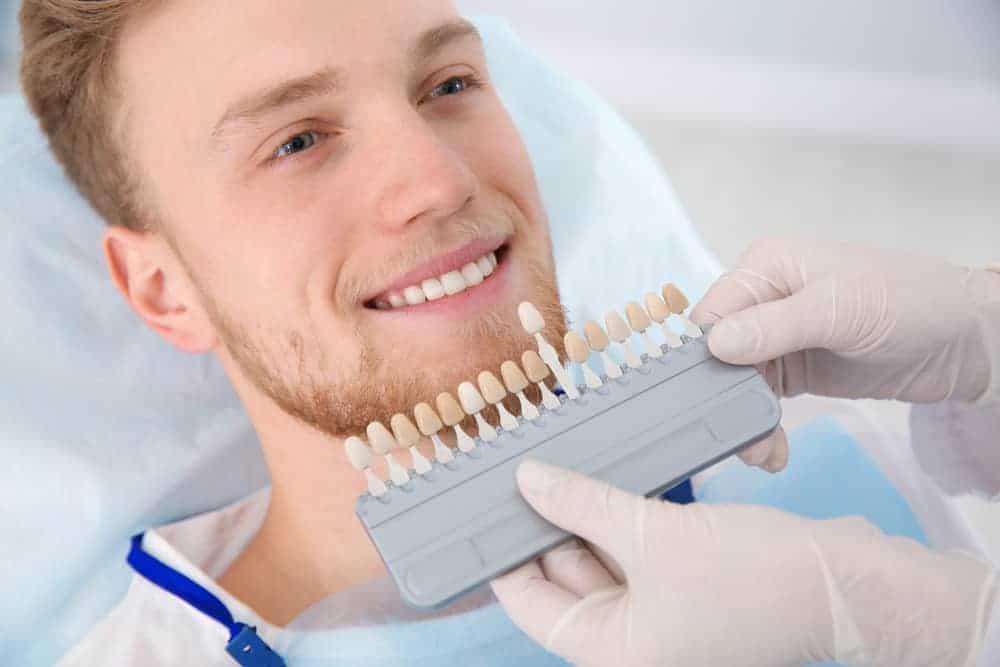 Are Dental Veneers Stain-Resistant?