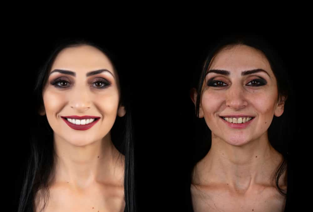 lady with porcelain veneers before and after