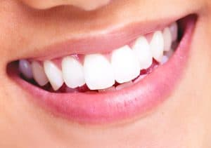 a patient showing off a smile with veneers