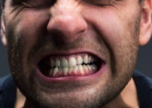 patient suffering with teeth grinding