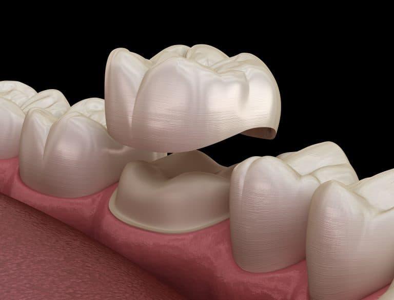 dental crown parkdale