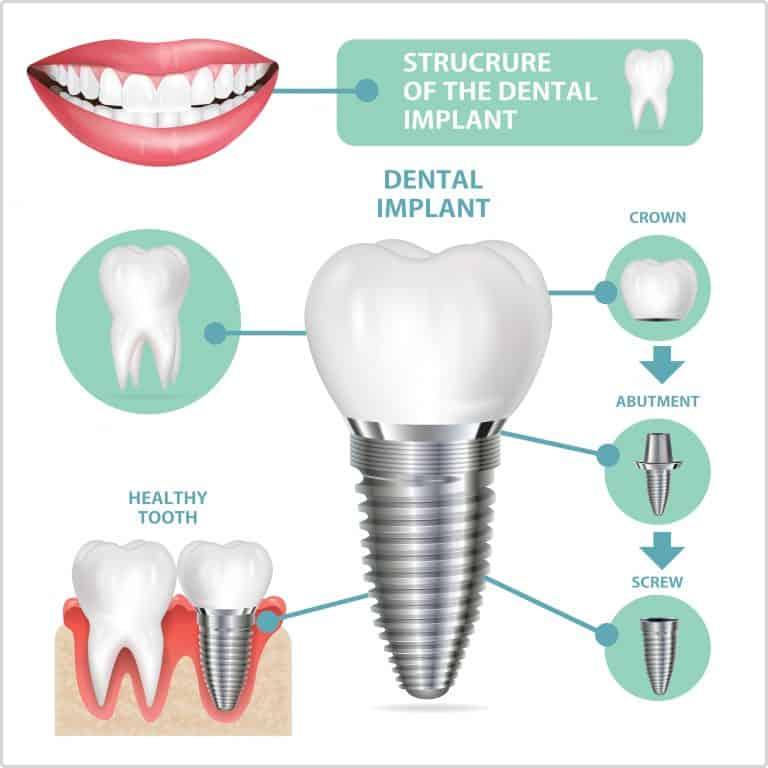 strucutre of dental implant parkdale