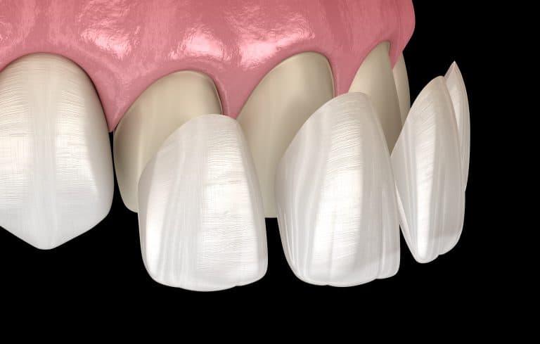 veneers dental solution